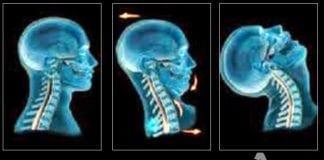 diagnostico esguince cervical y síndrome postraumatico cervical