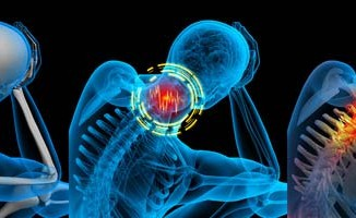 esguince cervical en accidentes de trafico
